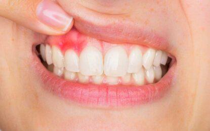 Buhar – Diş Etinde Sızlama